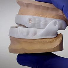 Model of mouth with oral appliance